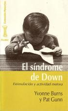 El Síndrome de Down - Yvonne Burns - Herder